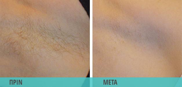 Αποτρίχωση με Laser στη μασχάλη. Φωτογραφία πριν & μετά
