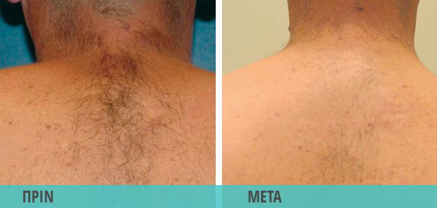 Αποτρίχωση με λέιζερ σε πλάτη και λαιμό. Φωτογραφία πριν & μετά το Laser