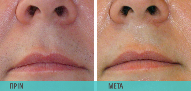 Αποτρίχωση με λέιζερ στο μουστάκι. Φωτογραφία πριν και μετά το laser