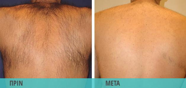 Αποτρίχωση με λέιζερ σε ανδρική πλάτη. Φωτογραφία πριν & μετά