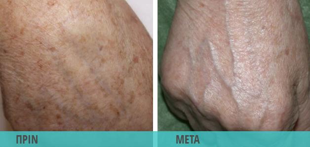Κηλίδες στα χέρια. Αφαίρεση με Laser : Φωτογραφία πριν & μετά το λέιζερ