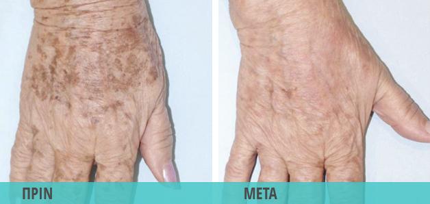 Κηλίδες στα χέρια. Αντιμετώπιση με λέιζερ (laser). Φωτογραφία πριν & μετά την αφαίρεση