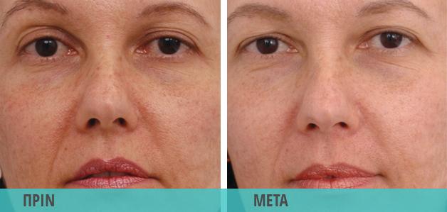 Lifting - Λίφτινγκ : Φωτογραφία πριν & μετά τη θεραπεία