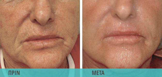 Lifting : Clear Lift για ρυτίδες στο πρόσωπο. Φωτογραφία πριν & μετά