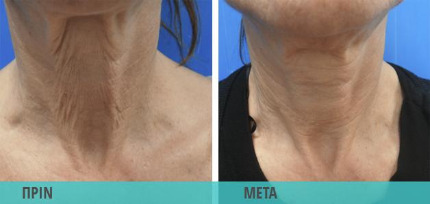 Lifting για ρυτίδες στο λαιμό. Φωτογραφία πριν & μετά τη θεραπεία
