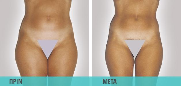 Lpg : Τοπικό λίπος, κυταρρίτιδα. Φωτογραφία πριν & μετά τη θεραπεία