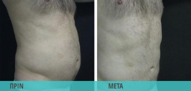 Smart Lipo : Λιποαναρρόφηση στην κοιλιά άντρα. Φωτογραφία πριν & μετά