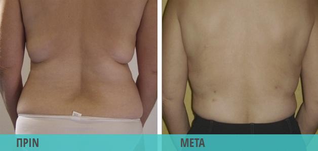 Smart Lipo : Αφαίρεση τοπικού λίπους σε κοιλιά και πλάτη. Φωτογραφία πριν & μετά