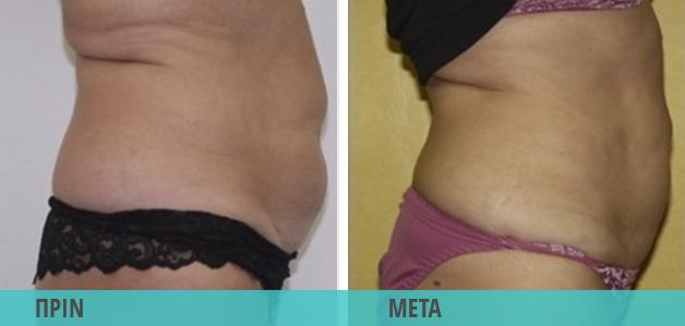 Smart Lipo : Τοπικό πάχος, λιποαναρρόφηση στην κοιλιά. Φωτογραφία πριν & μετά