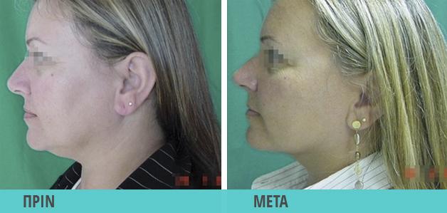 Smart Lipo : Λιποαναρρόφηση στο προγούλι, λιποαναρρόφηση στο πρόσωπο. Φωτογραφία πριν & μετά
