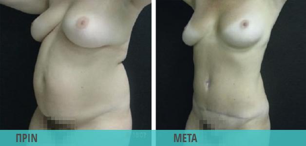Smart Lipo : Λιποαναρρόφηση στην κοιλιά, αφαίρεση τοπικού πάχους. Φωτογραφία πριν & μετά