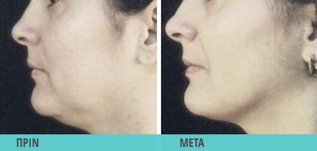Smart Lipo. Λιποαναρρόφηση στο προγούλι φωτογραφία πριν & μετά