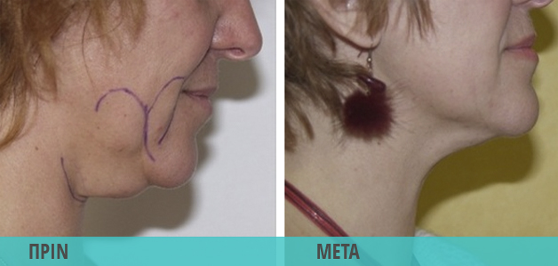 Smart Lipo λιποαναρρόφηση στο πρόσωπο & το προγούλι. Φωτογραφία πριν & μετά