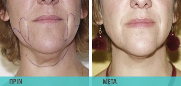 Smart Lipo Λιποαναρρόφηση στο πρόσωπο : Φωτογραφία πριν & μετά