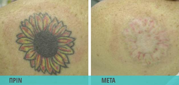 Αφαίρεση τατουάζ : Φωτογραφία πριν & μετά