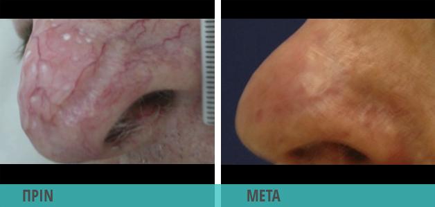 Ευρυαγγείες στη μύτη : Φωτογραφία πριν και μετά τη θεραπεία με λέιζερ