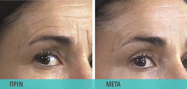 Ρυτίδες στα μάτια, ρυτίδες έκφρασης : Φωτογραφία πριν & μετά τη θεραπεία