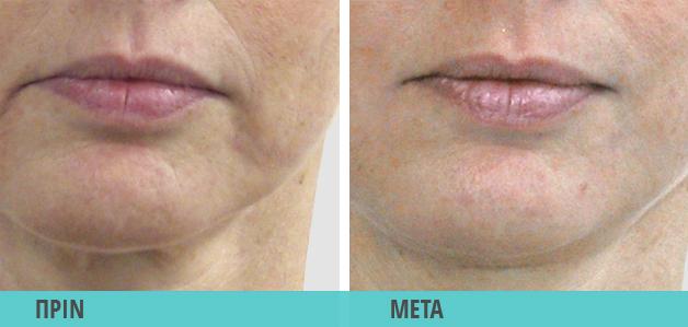 Ρυτίδες έκφρασης : Φωτογραφία πριν & μετά τη θεραπεία
