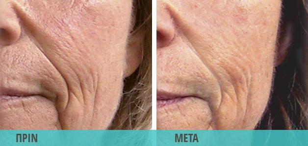 Ρυτίδες & ρυτίδες έκφρασης. Φωτογραφία πριν και μετά τη θεραπεία